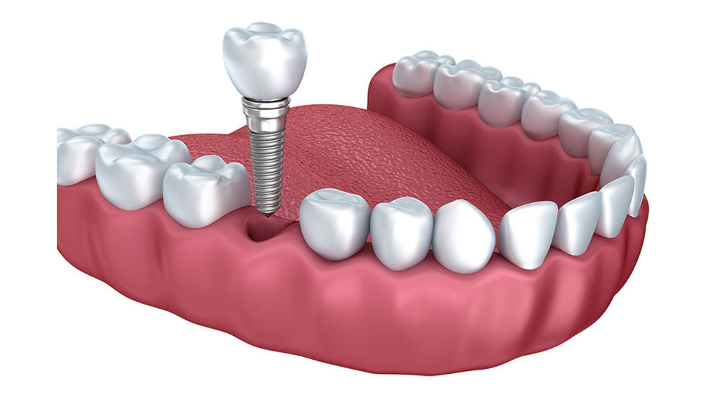 2019 Diş implant fiyatları